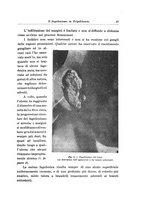 giornale/RML0030840/1920/unico/00000053